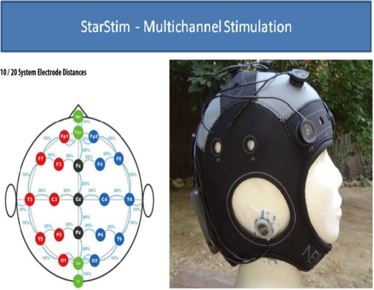 Star-Stim NE多导经颅直流电刺激仪